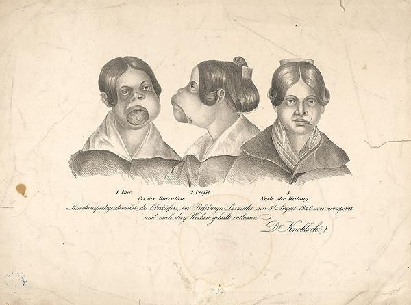 Stredoeurópsky grafik z 19. storočia - Operácia dr.Knoblocha