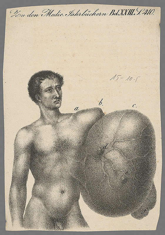 Nemecký grafik z 19. storočia – Muž s nádorom